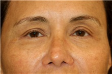 Eyelid Surgery Before Photo by Steve Laverson, MD; San Diego, CA - Case 44706
