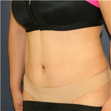 Tummy Tuck After Photo by Steve Laverson, MD; San Diego, CA - Case 44721