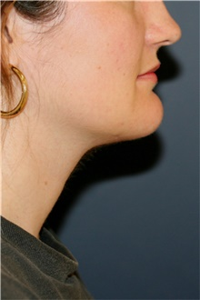 Chin Surgery After Photo by Steve Laverson, MD; San Diego, CA - Case 44727