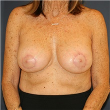 Breast Implant Revision After Photo by Steve Laverson, MD; San Diego, CA - Case 44729