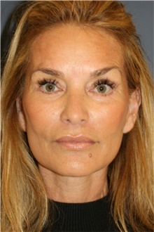 Facelift After Photo by Steve Laverson, MD; San Diego, CA - Case 44742