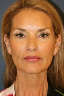 Facelift Before Photo by Steve Laverson, MD; San Diego, CA - Case 44742