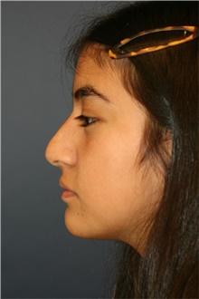 Rhinoplasty Before Photo by Steve Laverson, MD; San Diego, CA - Case 44765