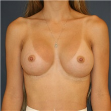Breast Augmentation After Photo by Steve Laverson, MD; San Diego, CA - Case 44775