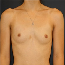 Breast Augmentation Before Photo by Steve Laverson, MD; San Diego, CA - Case 44775