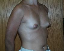 Breast Augmentation Before Photo by Fouad Samaha, MD; Quincy, MA - Case 6904