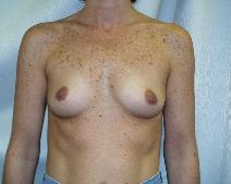 Breast Augmentation Before Photo by Fouad Samaha, MD; Quincy, MA - Case 6905