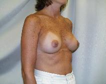 Breast Augmentation After Photo by Fouad Samaha, MD; Quincy, MA - Case 6905