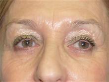 Eyelid Surgery After Photo by Florence Mussat, MD; Chicago, IL - Case 24740