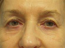 Eyelid Surgery Before Photo by Florence Mussat, MD; Chicago, IL - Case 24740