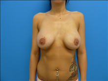 Breast Augmentation After Photo by Florence Mussat, MD; Chicago, IL - Case 24741