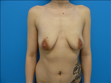 Breast Augmentation Before Photo by Florence Mussat, MD; Chicago, IL - Case 24741