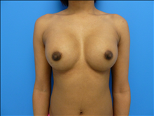 Breast Augmentation After Photo by Florence Mussat, MD; Chicago, IL - Case 24742