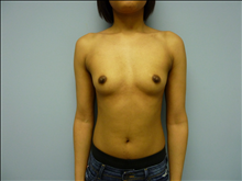 Breast Augmentation Before Photo by Florence Mussat, MD; Chicago, IL - Case 24742