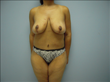 Body Contouring After Photo by Florence Mussat, MD; Chicago, IL - Case 24745