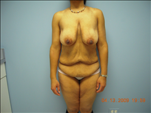Body Contouring Before Photo by Florence Mussat, MD; Chicago, IL - Case 24745