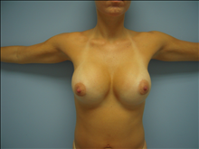 Breast Augmentation After Photo by Florence Mussat, MD; Chicago, IL - Case 24746