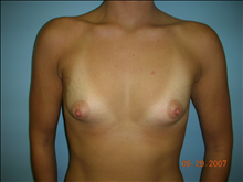 Breast Augmentation Before Photo by Florence Mussat, MD; Chicago, IL - Case 24746
