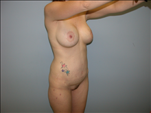 Tummy Tuck After Photo by Florence Mussat, MD; Chicago, IL - Case 24747