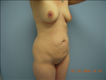 Tummy Tuck Before Photo by Florence Mussat, MD; Chicago, IL - Case 24747
