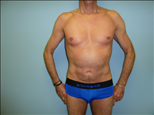 Liposuction After Photo by Florence Mussat, MD; Chicago, IL - Case 24748