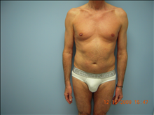 Liposuction Before Photo by Florence Mussat, MD; Chicago, IL - Case 24748