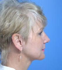 Facelift After Photo by Anthony Youn, MD; Troy, MI - Case 7374