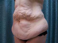 Tummy Tuck Before Photo by Christopher Constance, MD, FACS; Port Charlotte, FL - Case 28699