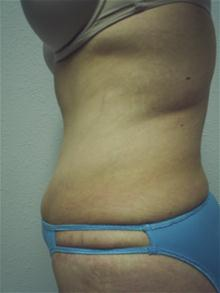 Tummy Tuck After Photo by Christopher Constance, MD, FACS; Port Charlotte, FL - Case 28699