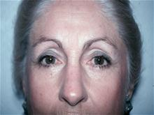 Eyelid Surgery After Photo by Christopher Constance, MD, FACS; Port Charlotte, FL - Case 28700