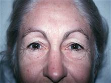 Eyelid Surgery Before Photo by Christopher Constance, MD, FACS; Port Charlotte, FL - Case 28700