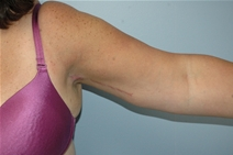 Arm Lift After Photo by Lucie Capek, MD; Latham, NY - Case 10512
