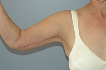 Arm Lift After Photo by Lucie Capek, MD; Latham, NY - Case 10513