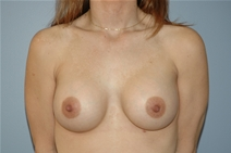 Breast Augmentation After Photo by Lucie Capek, MD; Latham, NY - Case 21475