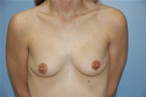 Breast Augmentation Before Photo by Lucie Capek, MD; Latham, NY - Case 21475