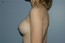 Breast Augmentation After Photo by Lucie Capek, MD; Latham, NY - Case 21476