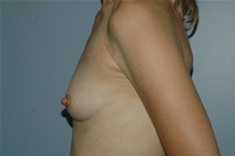 Breast Augmentation Before Photo by Lucie Capek, MD; Latham, NY - Case 21476