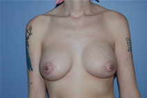 Breast Augmentation After Photo by Lucie Capek, MD; Latham, NY - Case 21484