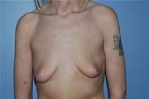Breast Augmentation Before Photo by Lucie Capek, MD; Latham, NY - Case 21484