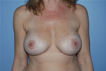 Breast Augmentation After Photo by Lucie Capek, MD; Latham, NY - Case 21496