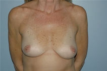 Breast Augmentation Before Photo by Lucie Capek, MD; Latham, NY - Case 21496