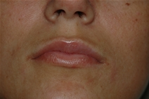 Dermal Fillers Before Photo by Lucie Capek, MD; Latham, NY - Case 21500