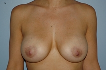 Breast Augmentation After Photo by Lucie Capek, MD; Latham, NY - Case 21502