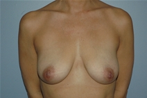 Breast Augmentation Before Photo by Lucie Capek, MD; Latham, NY - Case 21502