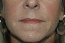 Dermal Fillers After Photo by Lucie Capek, MD; Latham, NY - Case 21650