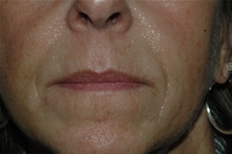 Dermal Fillers Before Photo by Lucie Capek, MD; Latham, NY - Case 21650