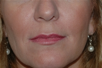 Dermal Fillers After Photo by Lucie Capek, MD; Latham, NY - Case 22203