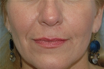 Dermal Fillers Before Photo by Lucie Capek, MD; Latham, NY - Case 22203