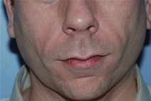 Dermal Fillers After Photo by Lucie Capek, MD; Latham, NY - Case 22416