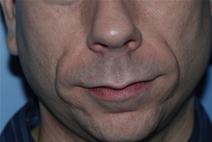 Dermal Fillers Before Photo by Lucie Capek, MD; Latham, NY - Case 22416